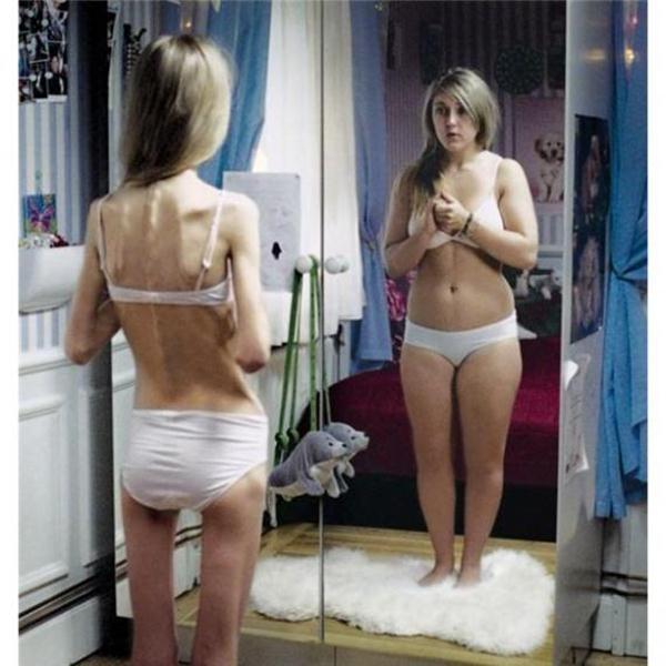 anorexia-nervosa