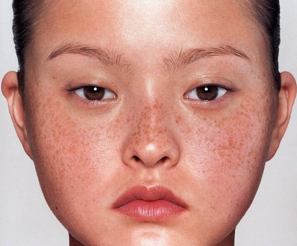 Beauty-Tips-For-Girls-With-Freckle-590x488