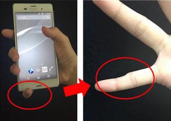 fingerdeformity-smartphone2 (Copy)