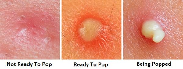 how-to-pop-a-pimple (Copy)