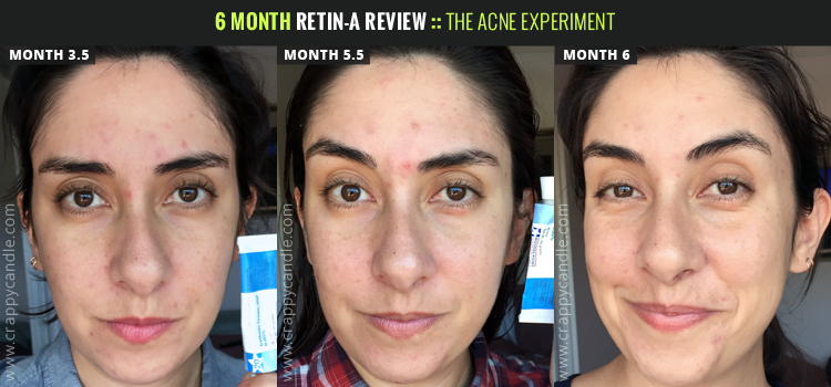 6month-retin-a-review-2